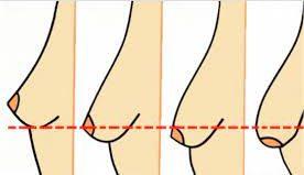La mastoplastica del seno cadente